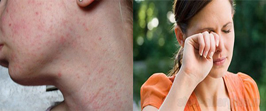 Причины и симптомы аллергии на IQOS