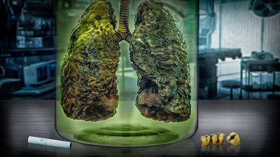 Влияние IQOS на легкие: может ли болеть грудь от курения