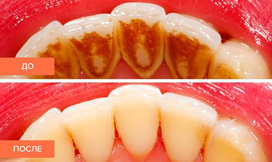 Как курение IQOS влияет на зубы